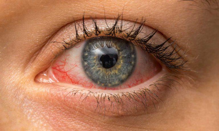 Qu'est-ce que la cataracte? et que faut-il savoir sur la chirurgie?
