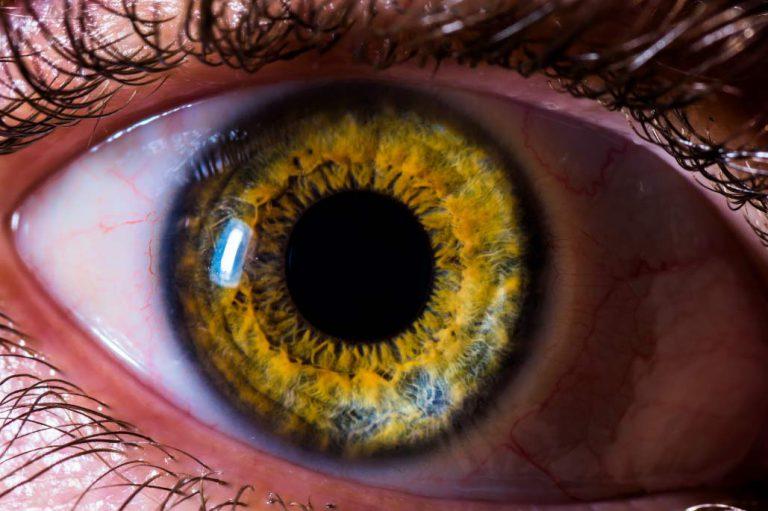 Est ce que la couleur des yeux peut changer ?