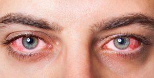 Symptômes, causes et traitements de la conjonctivite